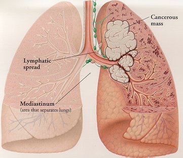 Interesting Facts About Lung Cancer Survival Rate