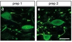 Representative images of DMnX neurons immunostained with an anti-hα-syn antibody from rats treated with (d) hα-syn-AAV prep 1 (e) prep 2