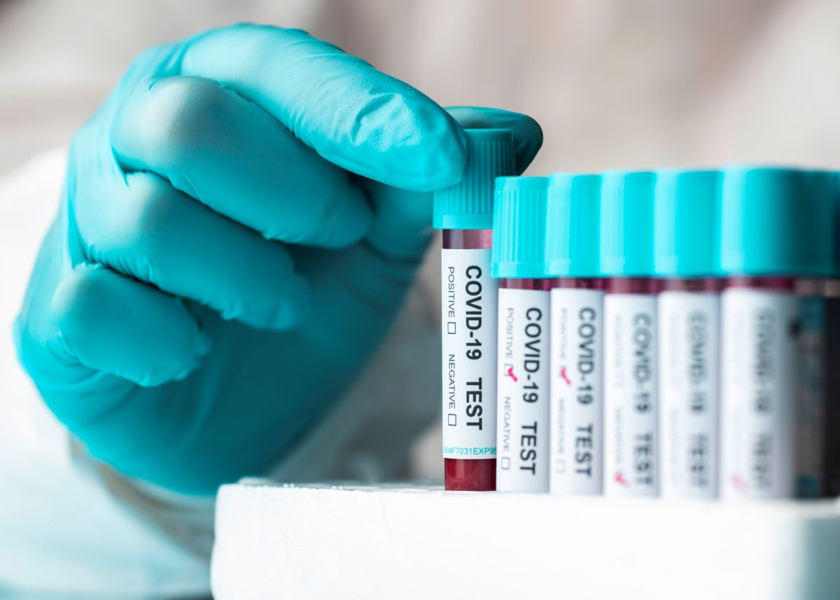 ZELLX® COVID-19 Coronavirus assays
